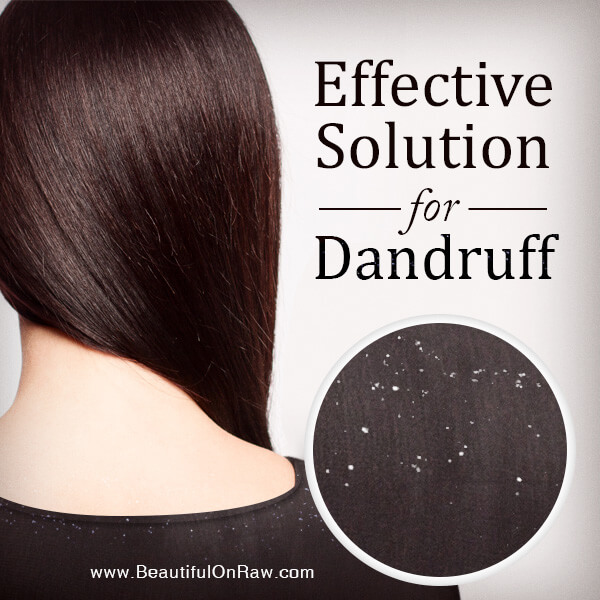 Effective Solution for Dandruff | Beautiful on Raw