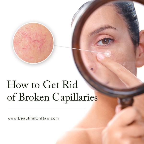 how to prevent broken capillaries