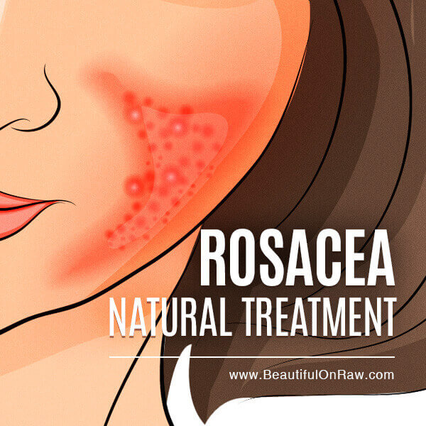 Rosacea natural treatment