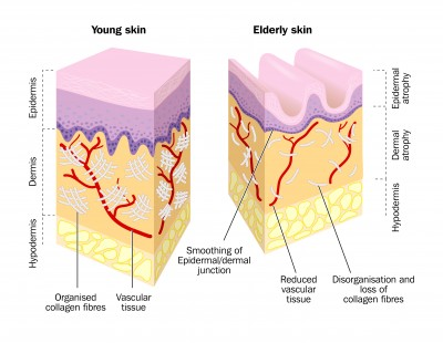 facial skin how different is it from the rest of the body Epidermis Diagram facial skin how different is it from the rest of the body?
